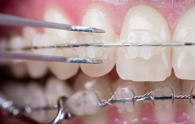 orthodontist dublin ceramic fixed braces photo