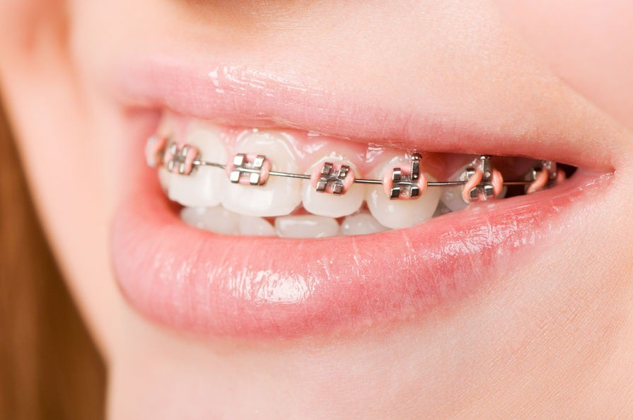 orthodontist dublin metal fixed braces photo