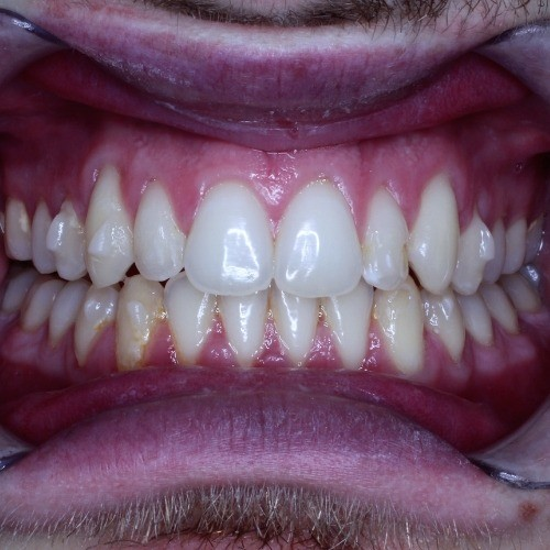 joseph after photo via invisalign clear braces photo