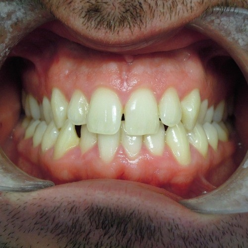 stephen teeth before photo via invisalign clear braces photo