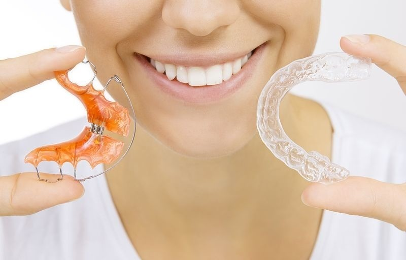 retainers via when should retainers be worn photo